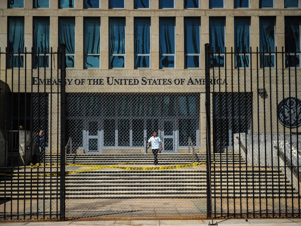 Study discovers changes in Cuban diplomats' brains, however no indication of attack