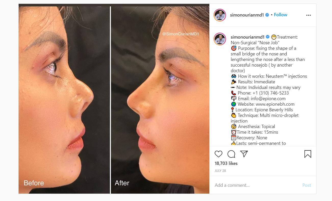 Non-Surgical Nose Jobs by Celebrity Doctor Simon Ourian