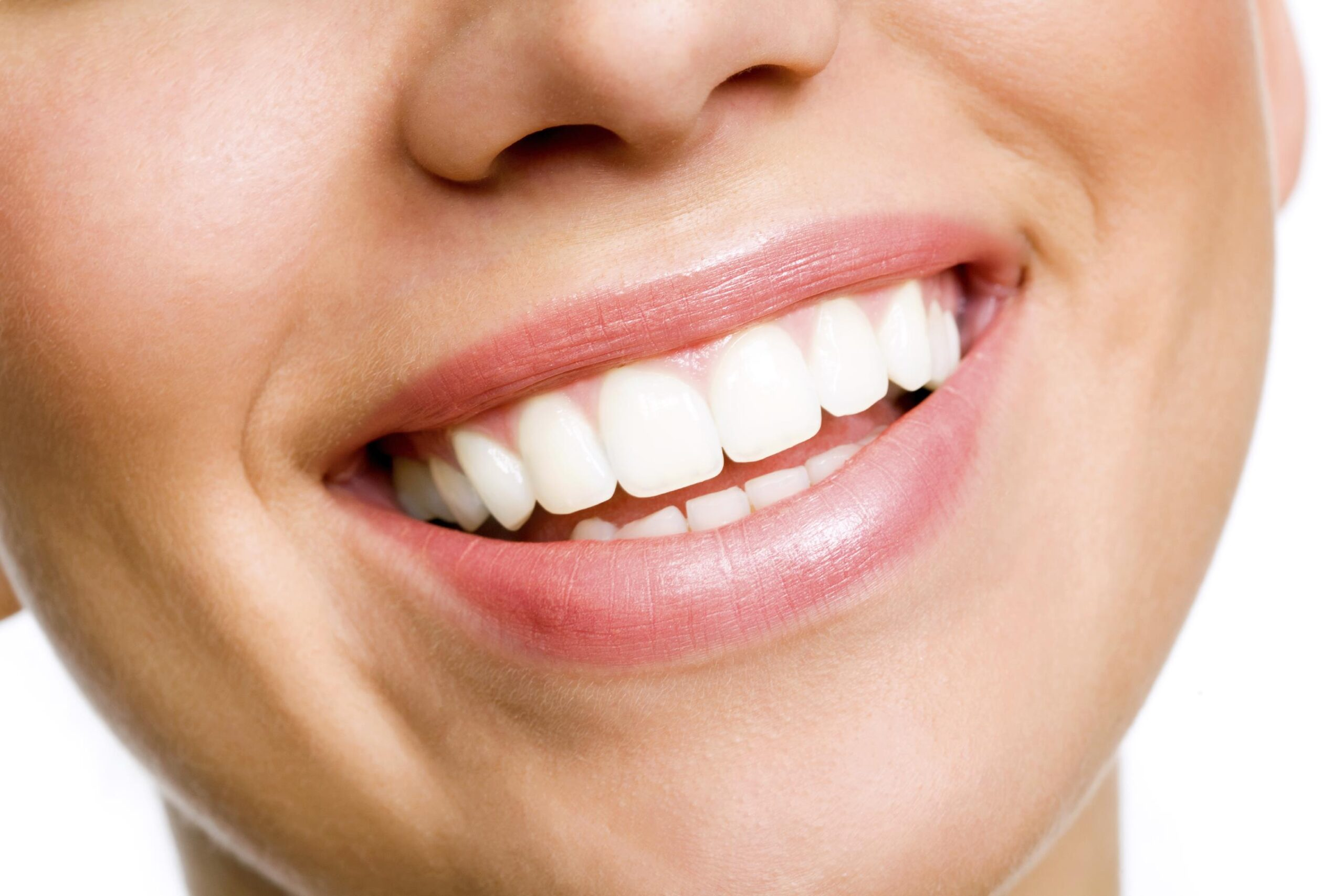 4 Reasons to Whiten Your Teeth with A Dentist Than A DIY Solution
